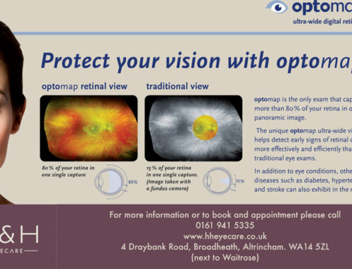 What is my retinal photograph missing?